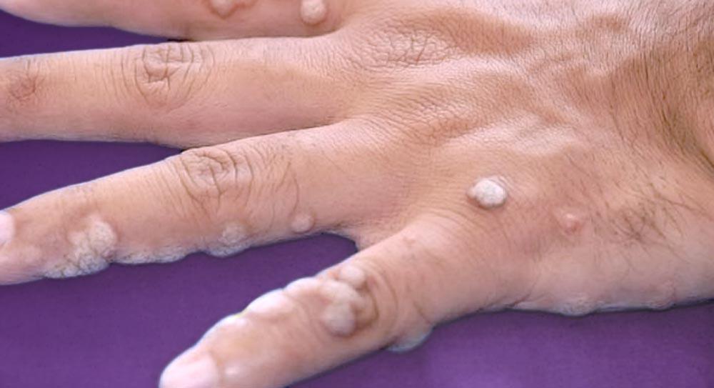 μυρμηγκιές-δερματολόγος-αφροδισιολόγος-ατζάρα-μαργαρίτα-αθήνα