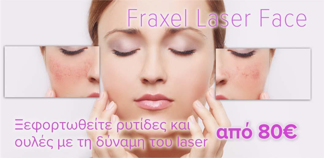 προσφορά-fraxel-laser-face-δερματολόγος-αφροδισιολόγος-ατζάρα-μαργαρίτα-αθήνα